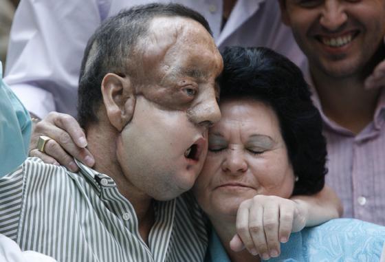 Rafael y su madre se abrazan tras la comparecencia del paciente tras ser dado de alta.  Foto: Javier Barbancho (Reuters)