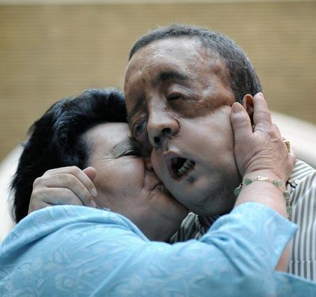Rafael y su madre se abrazan tras la comparecencia del paciente al ser dado de alta.  Foto: Juan Carlos Vázquez