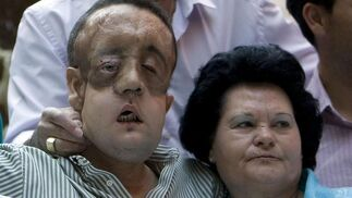 Rafael y su madre se abrazan tras la comparecencia del paciente tras ser dado de alta.  Foto: Juan Carlos Vázquez