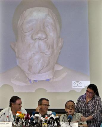 Rafael, junto a su hermana y los médicos que le realizaron el trasplante. Al fondo, imagen de Rafael antes de la intervención.  Foto: Eduardo Abad (Efe)
