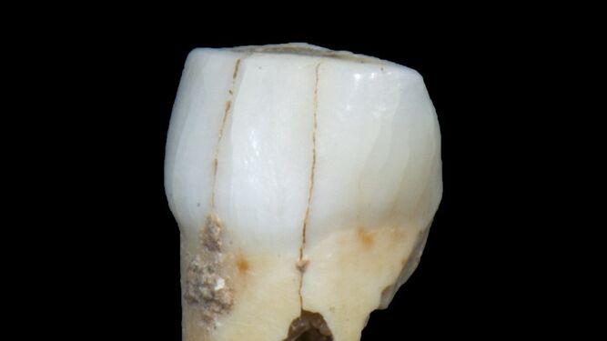 Tres ángulos distintos del diente realizados por el Museo de Gibraltar.